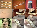 Mopfloss (Cleaning between teeth)